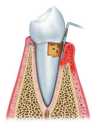 Zahnfleischreinigung